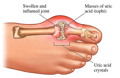 Gout - Illustration