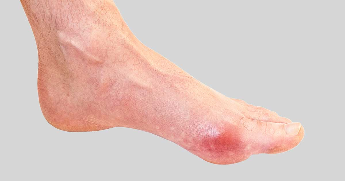 Red, swollen gout on a big toe of someone's foot.
